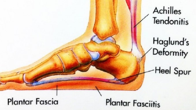 Have You Considered Rolfing For Plantar Fasciitis Treatment?
